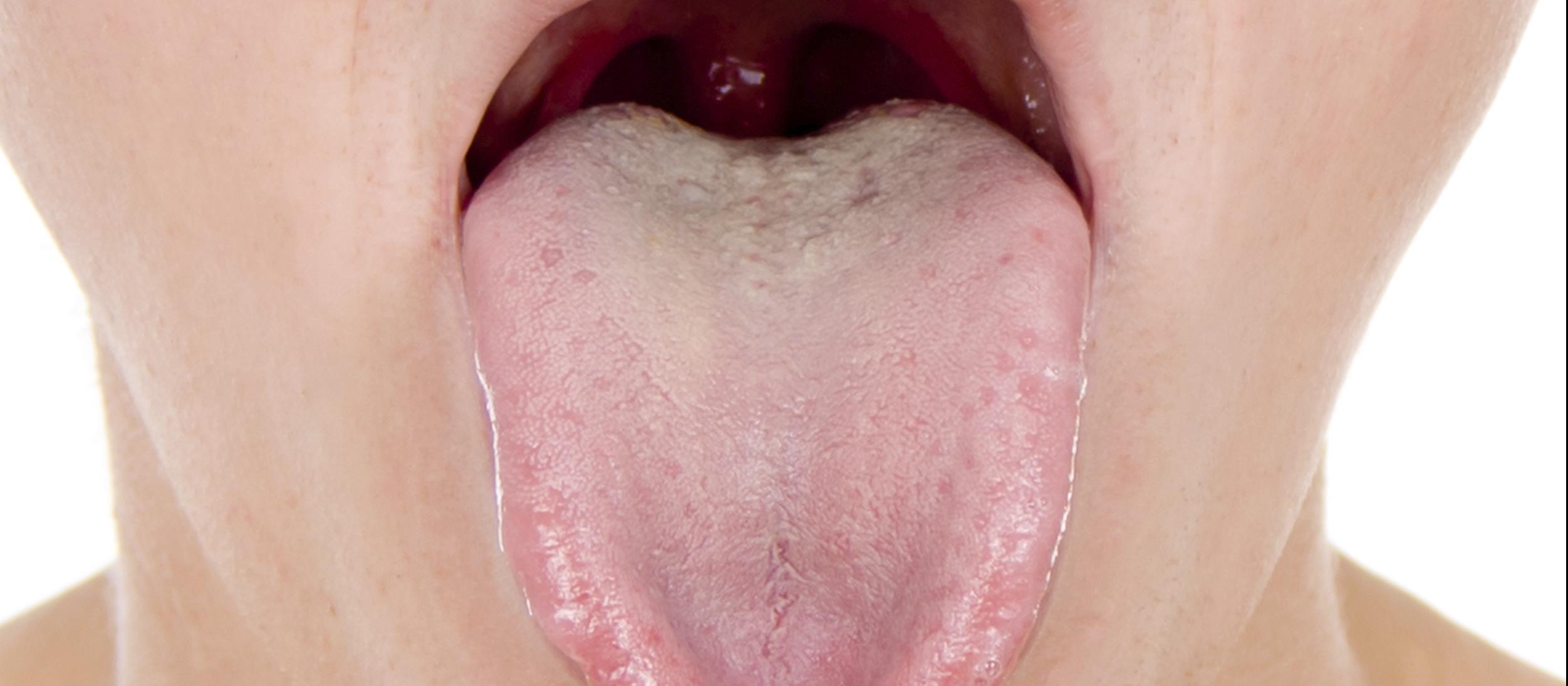 When a sore throat turns into meningitis | New Zealand Doctor