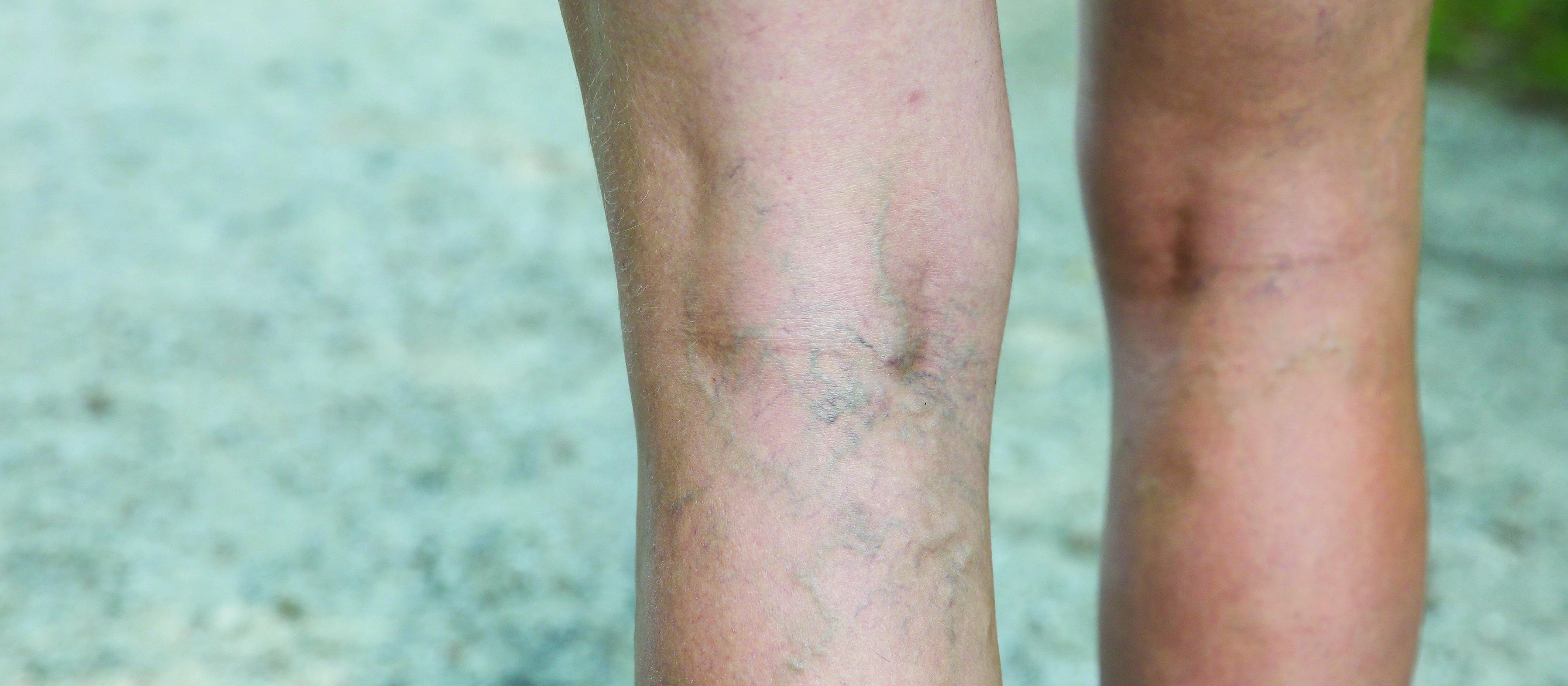 understanding varicose veins; what are the new treatment options