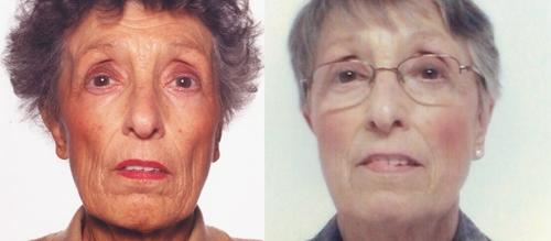 The Patient's Facial Appearance at Presentation versus after Treatment. Facial appearance at presentation (left), showing pigmentation, and after treatment (right).© 2005 Petros Perros