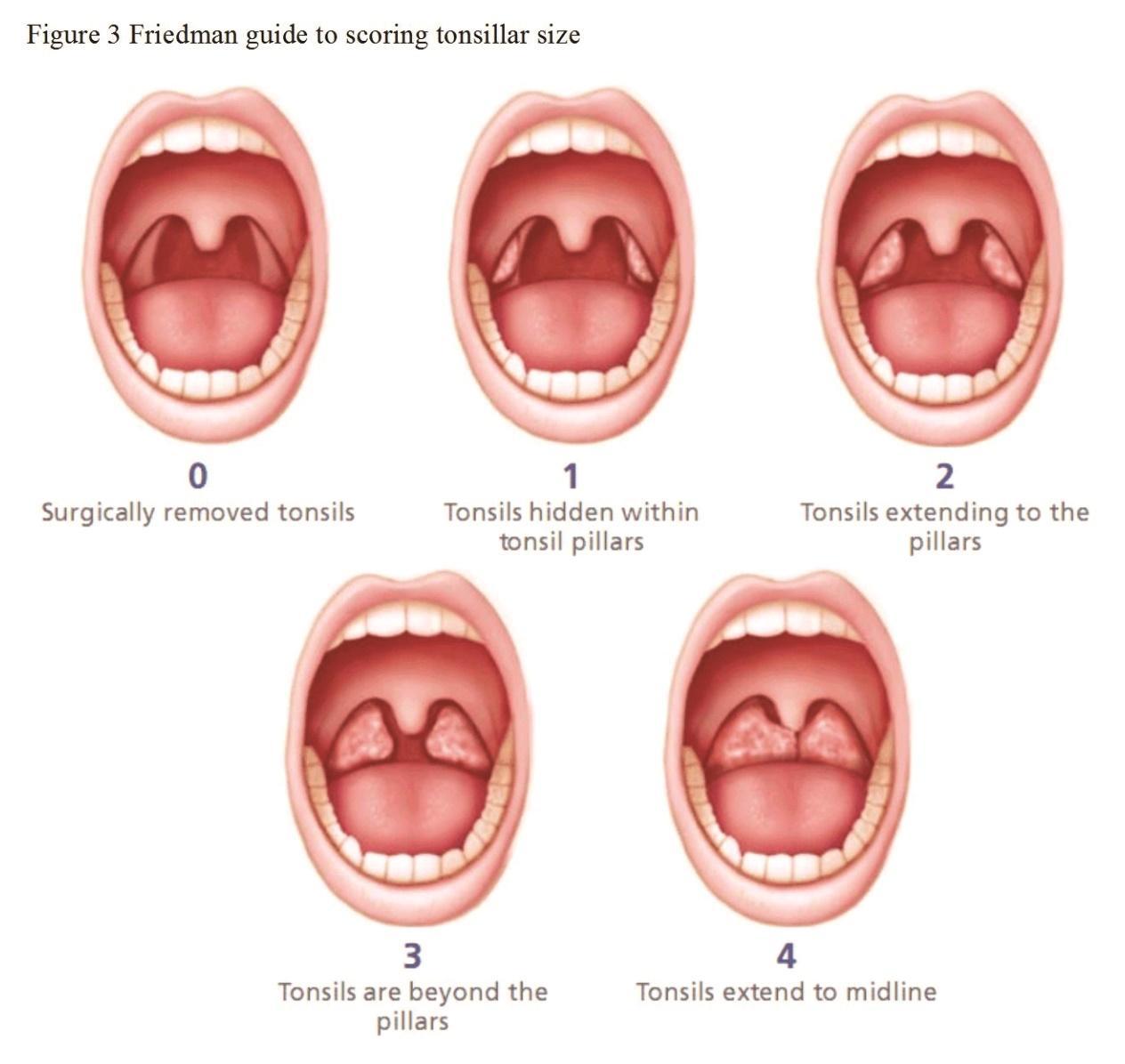 Current Strategies For Adenotonsillar Infection Hyperplasia